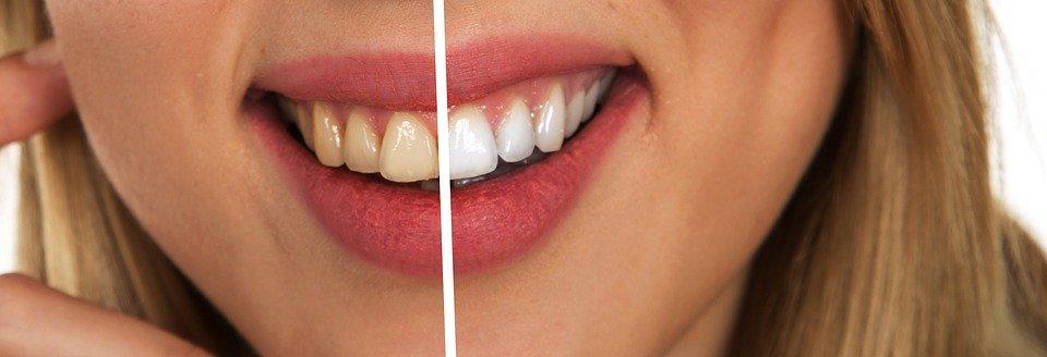domowe sposoby na wybielenie zębów, jak wybielić zęby w domu,